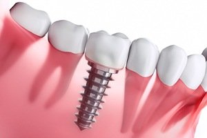 Benefits of Dental Implants - Canatella Dental