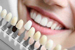 Indications for Dental Implants - Canatella Dental
