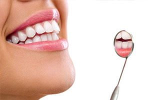 Periodontal Therapy - Canatella Dental