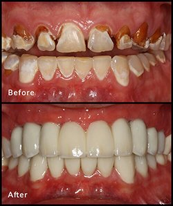 Full Mouth Dental Implants Near Me in Metairie LA, and New Orleans LA