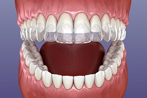 Cosmetic Dentistry Question and Answers