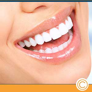 Teeth Whitening Near Me in Metairie LA, and New Orleans LA