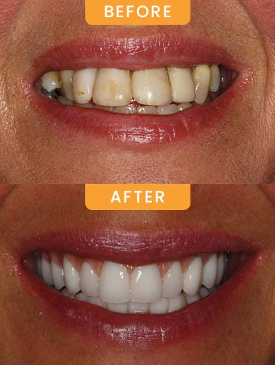 Smile Gallery of Canatella Dental in Metairie, LA and New Orleans, LA
